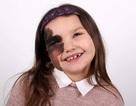Cô bé 7 tuổi tự tin với vết bớt hiếm gặp chiếm nửa khuôn mặt