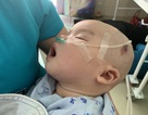 Bạn đọc Dân trí hỗ trợ nóng hơn 124 triệu đồng giúp cháu bé bị tim bẩm sinh, không lá lách