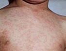Hơn 18 nghìn ca nghi sởi trong cả nước, Bộ Y tế ráo riết yêu cầu phòng chống dịch
