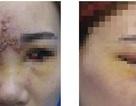 Cô gái trẻ mất thị lực, đau nửa đầu sau tiêm filler làm đầy mũi