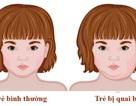 7 dấu hiệu của bệnh quai bị