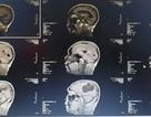 Phẫu thuật ổ sán não khổng lồ trong não nam bệnh nhân