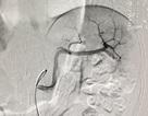 Gây tắc động mạch cứu lá lách bị vỡ cho cô gái trẻ