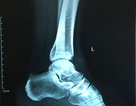 Sau 1 năm chơi bóng đá, nam thanh niên mới được phát hiện chấn thương chân vị trí hiểm