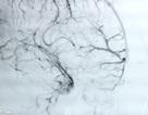 Bệnh nhân trẻ xuất huyết não sau nhiều áp lực công việc