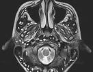 Rùng mình với ấu trùng sán chi chít trong não do ăn thịt lợn chưa nấu chín