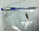 Bệnh nhân bị thủng ruột do nuốt mảnh xương heo