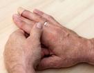 Đau ngón tay: nguyên nhân và cách điều trị