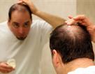 Kích thích sự phát triển của nang tóc