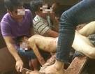 Nam công nhân bị máy gạch cuốn nát cánh tay, gãy 3 xương sườn