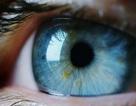 Người phụ nữ khốn khổ vì có… bốn con ong sống trong mắt