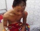 Nam sinh lớp 11 bị sét đánh cháy sém, bỏng độ 4 ở vùng đầu