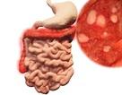 Đau đại tràng uống thuốc gì để không bị tái phát?