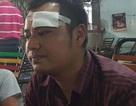 Đòi nợ, phó giám đốc bị 10 giang hồ đánh chảy máu đầu