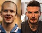 Hài hước với hình ảnh Beckham rụng răng, hói đầu vào năm… 2020