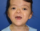 """Cô bé mắc chứng hẹp hộp sọ được """"nới"""" sọ thành công sau 6 lần phẫu thuật"""
