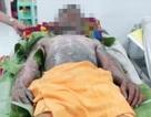 Đang ăn cơm, bếp gas mini bất ngờ phát nổ khiến nam thanh niên bị bỏng nặng