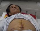 Bệnh nhân bị tái viêm ruột thừa do bác sĩ tuyến trước... mổ sót