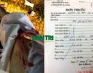 Bị người lạ tấn công bằng vật nhọn, cô gái trẻ đi điều trị phơi nhiễm