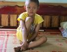 Khâm phục nghị lực phi thường của bé gái 10 tuổi  bị cắt một phần lá gan vì ung thư