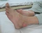 3 cách đối phó với bệnh gút ở mắt cá chân