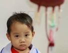 Mẹ trẻ choáng váng không tin con mắc căn bệnh tiêu tốn 2000 tỷ của người Việt mỗi năm