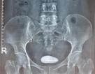 Đái buốt, đau bụng, nữ bệnh nhân bất ngờ phát hiện vòng tránh thai chui lạc vào bàng quang