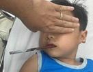 Hi hữu: Bệnh nhi 6 tuổi bị đũa xuyên thấu vùng hầu họng
