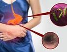 Giải pháp hỗ trợ đẩy lùi bệnh viêm loét dạ dày tá tràng do vi khuẩn gây nên