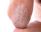 Phương pháp giúp cải thiện triệu chứng vảy nến được nhiều người áp dụng