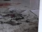 Đâm vợ trọng thương rồi đổ xăng đốt, 2 người tử vong