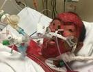Tự ý dùng thuốc trị cảm cúm bệnh nhân bị phù, xuất huyết toàn thân