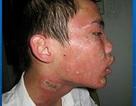 """Kiến ba khoang tấn công, người Sài Gòn """"mất ăn mất ngủ"""""""