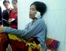 Cắt tai, bạo hành vợ cũ, chồng lãnh 42 tháng tù giam