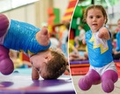 Cảm phục nghị lực của cô bé vận động viên 5 tuổi mất cả tứ chi vì viêm màng não
