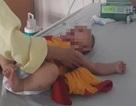 Quảng Bình:  Bé gái 6 tháng tuổi phải cắt bỏ buồng trứng vì gia đình không đưa đi viện sớm