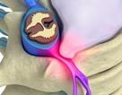 Mách bạn 3 phương pháp điều trị thoát vị đĩa đệm cực hay