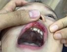 """Hà Nội: Cô giáo """"vuốt"""" má bé 3 tuổi hằn cả bàn tay và tụ máu môi"""