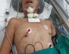 Nỗi đau cùng cực của người đàn bà ung thư bất lực nhìn chồng chấn thương sọ não