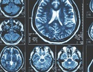 Các nhà nghiên cứu phát hiện ra những dấu hiệu sớm nhất của bệnh Parkinson trong não