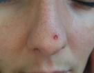 Làm đẹp không phòng bị cẩn thận, cô gái phải cắt bỏ một phần mũi