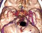 Người đàn ông 5 năm mắc kẹt vụn gỗ trong não
