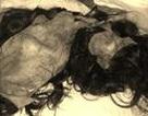 Bị máy xát lúa lột hết da đầu, người phụ nữ còn trơ hộp sọ