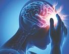 """Bị đột quỵ não vì tin lời """"tập luyện giáo phái lạ"""" không cần dùng thuốc"""