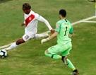 Thủ môn Chile bị dọa giết sau sai lầm ở bán kết Copa America