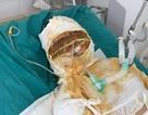 Đớn đau thảm cảnh gia đình 4 người bị thiêu sống: Hãy cứu tính mạng 2 bà cháu