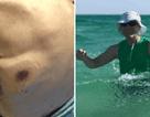 Ra biển tắm, người đàn ông trở về với vết bầm, hai ngày sau tử vong đau đớn