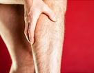 Tắc động mạch chân có thể được điều trị không cần phẫu thuật trong tương lai gần
