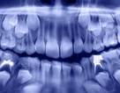 Các nha sĩ lấy ra hơn 500 chiếc răng từ miệng của một cậu bé… 7 tuổi