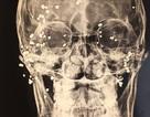 """Hoảng hồn hình ảnh phim X-quang """"loé sáng"""" gần 50 viên đạn hoa cà hoa cải găm khắp mặt bệnh nhân"""